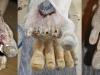 12-Prsti-noge-faze-obnove